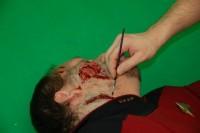 Smrtelné zranění